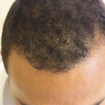 Post Hair Transplant 4 months5