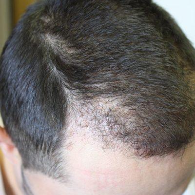 Post Hair Transplant 4 months6