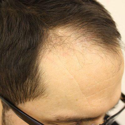 Pre Hair Transplant 1b