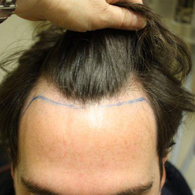 Pre Hair Transplant 2