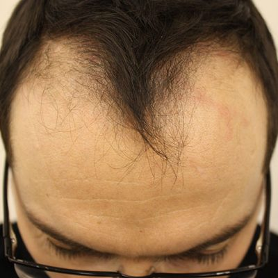Pre Hair Transplant 3b